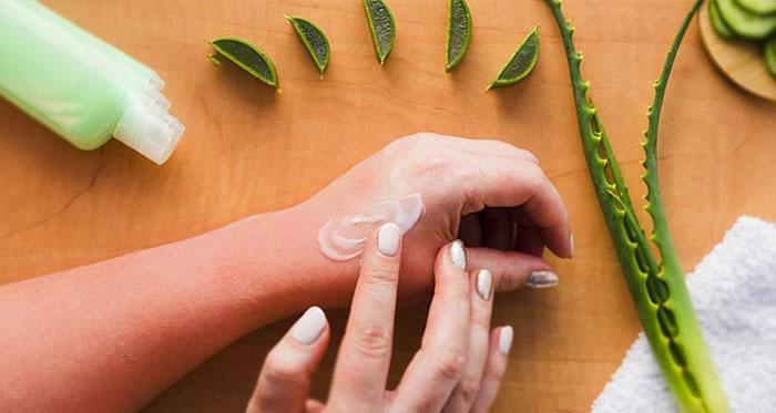 درمان آفتاب سوختگی با آلوئه ورا یا کرم آلوئه ورا