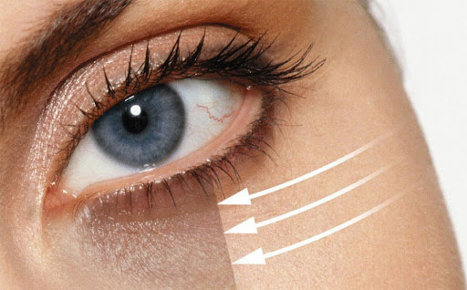 بهترین درمان تیرگی دور چشم