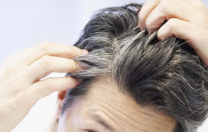 10 روش ساده برای جلوگیری از سفید شدن مو