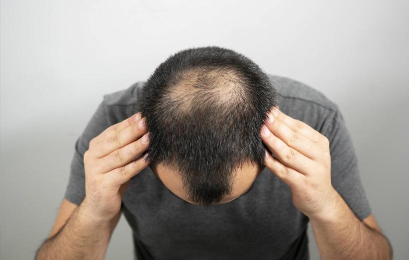 درمان قطعی ریزش مو با سیاه دانه