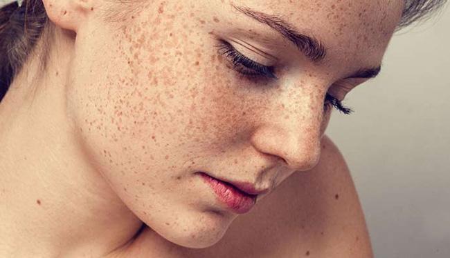 از بین بردن لک های پوستی بعد از زایمان