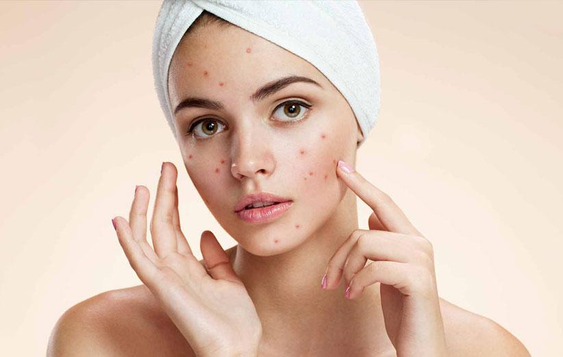درمان جوش صورت با تغذیه | چگونه جوش صورت و آکنه را از بین ببریم؟