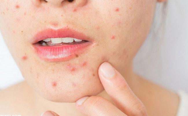 مطمئن ترین روش درمان جوش صورت و آکنه