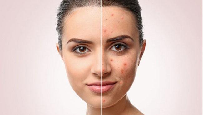 بهترین روش های جلوگیری از جوش صورت و آکنه، چیکار کنیم تا صورتمون جوش نزنه؟